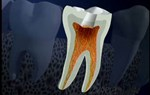 Phòng ngừa bệnh viêm tủy xương hàm