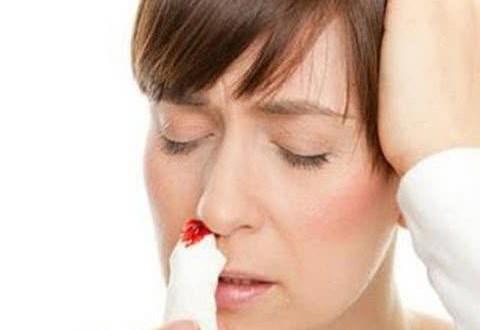 Bài thuốc chữa chảy máu cam