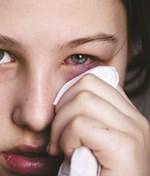 Bài thuốc điều trị bệnh viêm kết mạc