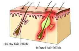 Bệnh viêm nang lông, cách điều trị viêm nang lông