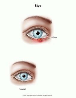 Cách phân biệt lẹo và chắp mắt