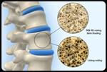 Làm thế nào giúp xương luôn chắc khỏe?