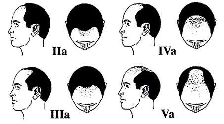 Các giai đoạn của hói đầu