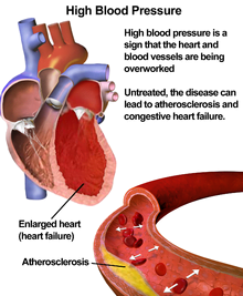 Cao huyết áp, huyết áp cao
