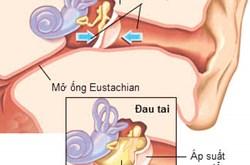 Các loại thuốc điều trị viêm tai giữa