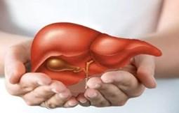 Những điều cần biết về bệnh viêm gan A