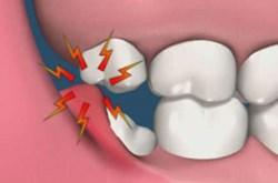 Răng khôn là răng gì?