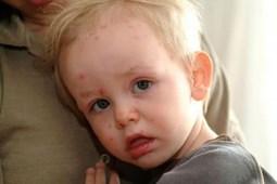 Nhận biết trẻ mắc bệnh sởi và cách xử trí