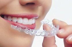 Cẩn thận khi tẩy trắng răng cho người dưới 18 tuổi