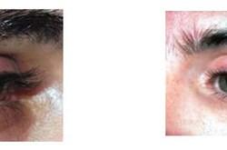 Cách phân biệt bệnh chắp và lẹo mắt