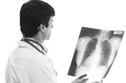 Cách điều trị bệnh áp xe phổi