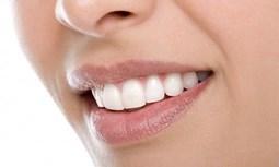 Cách nào phòng chống cao răng?