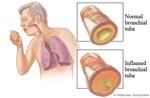 Triệu chứng thường gặp khi mắc bệnh viêm phế quản cấp
