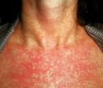Bài thuốc điều trị bệnh rubella