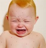 Nguyên nhân khiến trẻ dưới 9 tháng tuổi bị mắc bệnh sởi