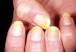 Những triệu trứng, dấu hiệu của bệnh xơ gan cổ chướng