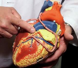 Bệnh tim mạch, nguyên nhân và cách điều trị bệnh tim mạch