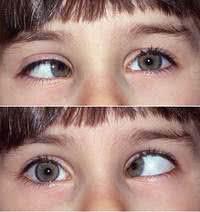 Bệnh lé mắt, mắt lác