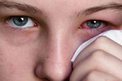 Chữa đau mắt đỏ không cần dùng thuốc tây