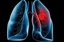 Bị ung thư phổi nên ăn gì, ăn thế nào?