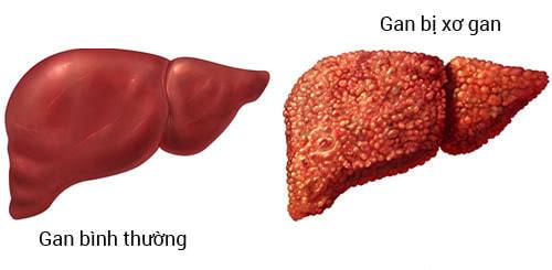 Bệnh xơ gan, gan bình thường và gan bị xơ