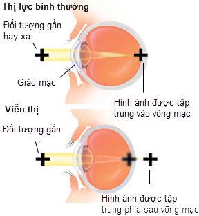 Hình ảnh mắt bình thường và mắt viễn thị