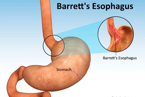 Bệnh barrett thực quản, điều trị barrett thực quản