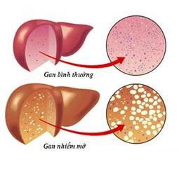 Các loại thuốc gây bệnh gan nhiễm mỡ