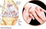 Nguyên nhân và phòng ngừa đau nhức xương khớp