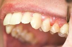 Viêm nha chu có thể gây rụng răng