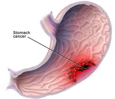 Ung thư dạ dày, bệnh ung thư dạ dày, thuốc chữa ung thư dạ dày
