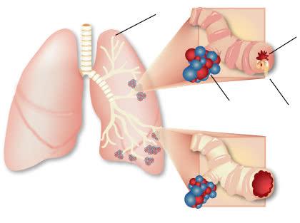 Hen suyễn, bệnh hen suyễn