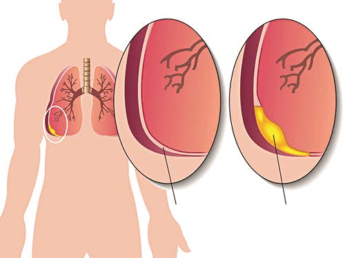 Tràn dịch màng phổi, bệnh tràn dịch màng phổi