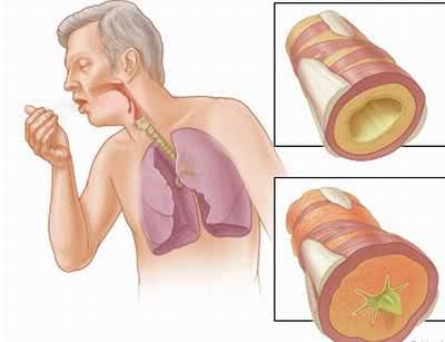 Bệnh viêm phế quản, bài thuốc chữa viêm phế quản