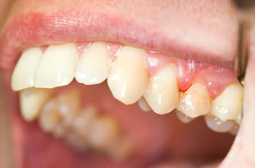 Viêm nướu răng, bệnh viêm nướu răng lợi