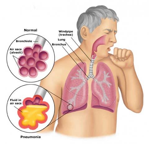 Viêm phổi, bệnh viêm phổi