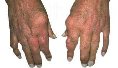 Bệnh gout, bệnh gút