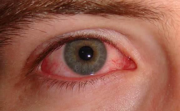 Đau mắt hột, thuốc điều trị đau mắt hột