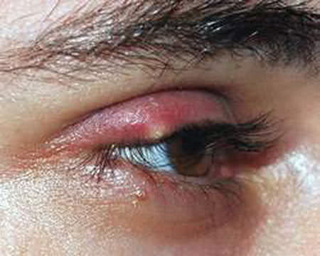 Bệnh chắp mắt, thuốc điều trị chắp mắt