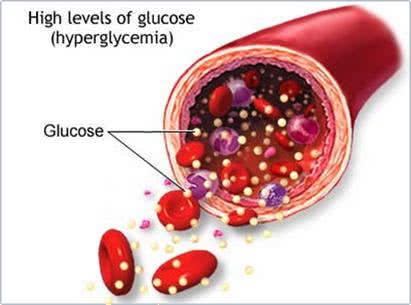 Bệnh đái tháo đường, tiểu đường