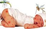 Bài thuốc nam giúp điều trị bệnh sốt xuất huyết