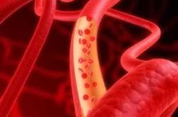 Nguyên nhân và cách phòng ngừa mỡ máu cao