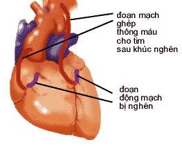 Ghép động mạch vành tim.