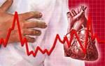 Các loại bệnh liên quan đến tim mạch thường gặp