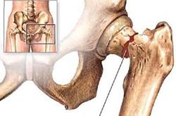 Cách điều trị loãng xương cho người cao tuổi