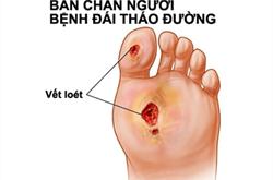 Loét bàn chân có thể là dấu hiệu bệnh tiểu đường