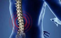 Bệnh thoái hóa cột sống thắt lưng và cách điều trị