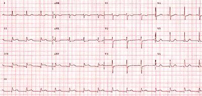 Điện tâm đồ nhồi máu cơ tim