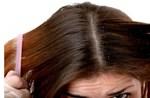 Bệnh nấm tóc và cách điều trị