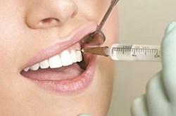 Bệnh viêm tủy răng, nguyên nhân gây viêm tủy răng